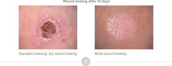 moist wound healing polyurethane
